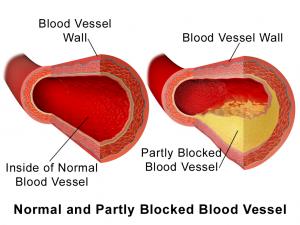 pomegranate for heart health fixitplan
